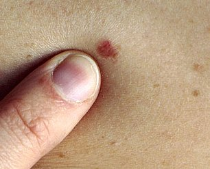 skin cancer spots