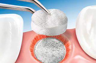 Principais tipos de biomateriais da Odontologia