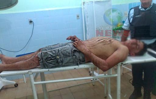 Acopiara: Homem tenta suicídio por enforcamento