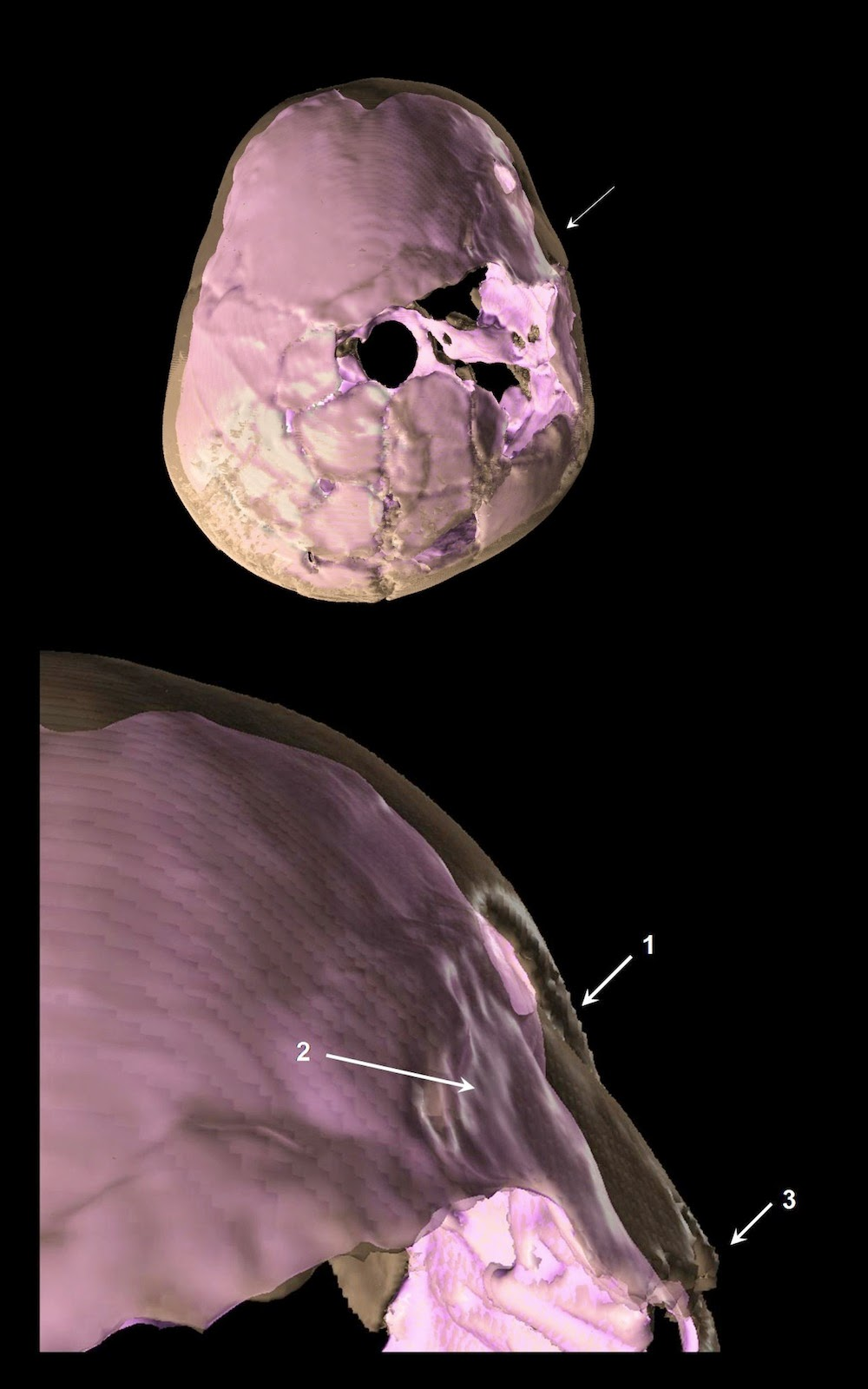 is a 3-D reconstruction of skull compound fracture and endocranial-4.bp.blogspot.com