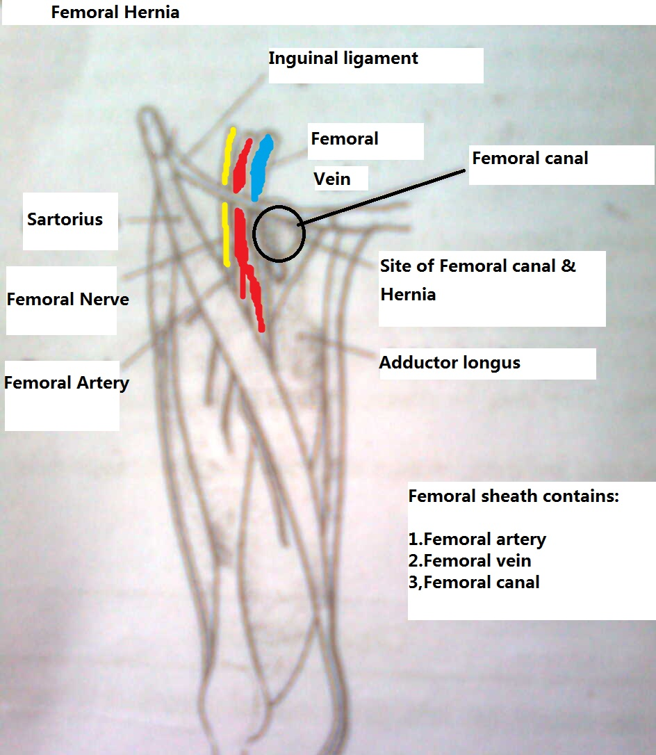 MBBS Medicine (Humanity First): Difference between Inguinal Hernias