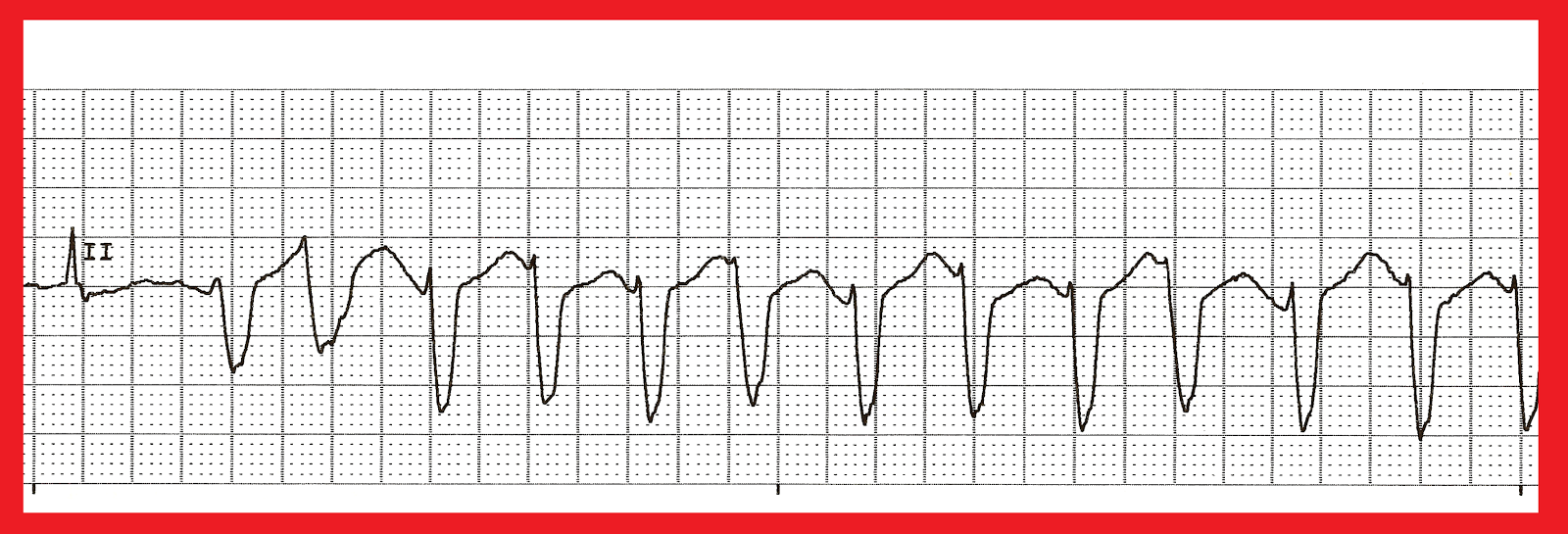 answers lab06 ecg Ecg signal filtering  learn more about ecg, matlab, filter design, bandpass sign in to answer this question.