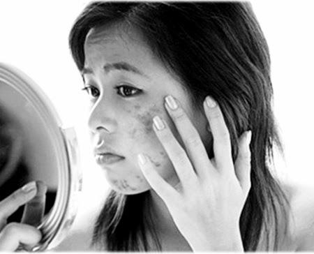 mitos jerawat remaja