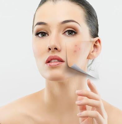 woman-with-acne ,كيف تتخلصين من حب الشباب نهائيا