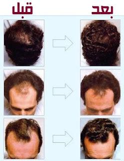 معالجة تساقط الشعر