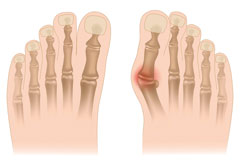 علاج وأسباب إنحراف اصبع القدم الإبهام