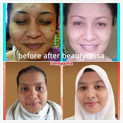 Testimoni Pengguna Beauty Rossa