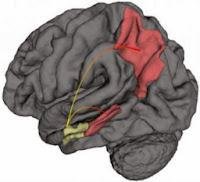Brain showing Alzheimer's beginnings & progression