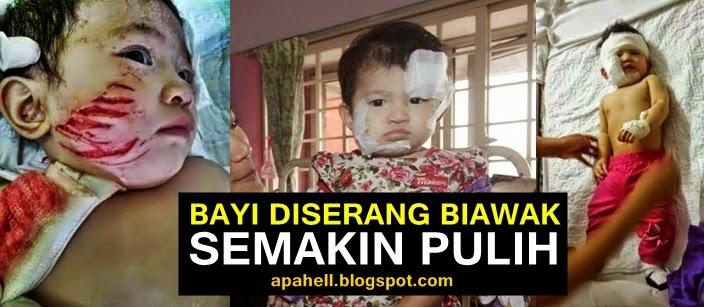 Bayi 8 Bulan Diserang Biawak Semakin Pulih (3 Gambar)