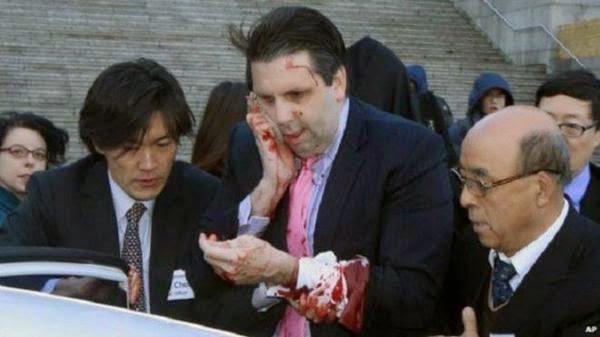 بالصور: كوري يهاجم السفير الامريكي في « سيول » ويسبب له جرحا في الوجه