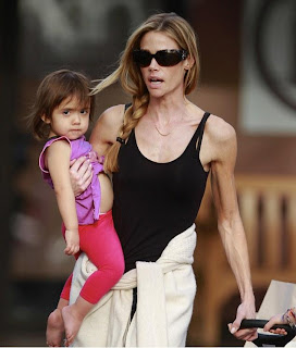 Post settings Labels Denise Richards Too Skinny, Denise Richards, skinny