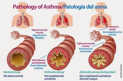 http://pengobatanasma.blogspot.com/