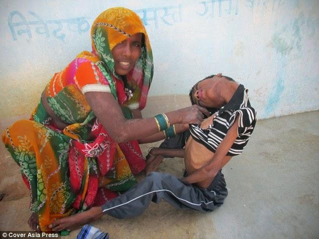 طفل تتدلى رقبته