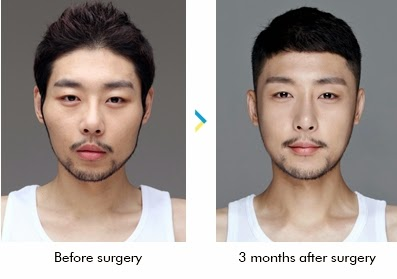 Sebelum dan sesudah reduksi tulang pipi di Wonjin