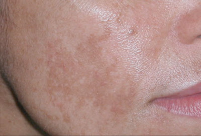 Natural treatment for melasma or cloth