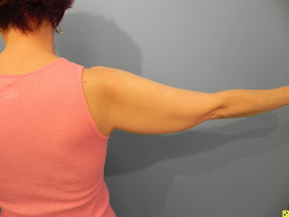 slim arms exercise