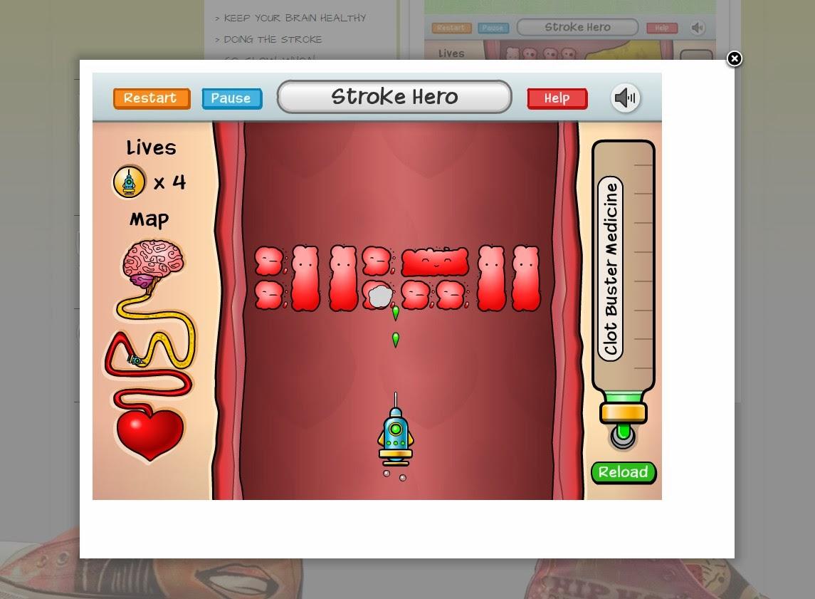 写真:脳卒中ゲーム