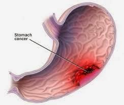 Cara Menyembuhkan Tumor Lambung