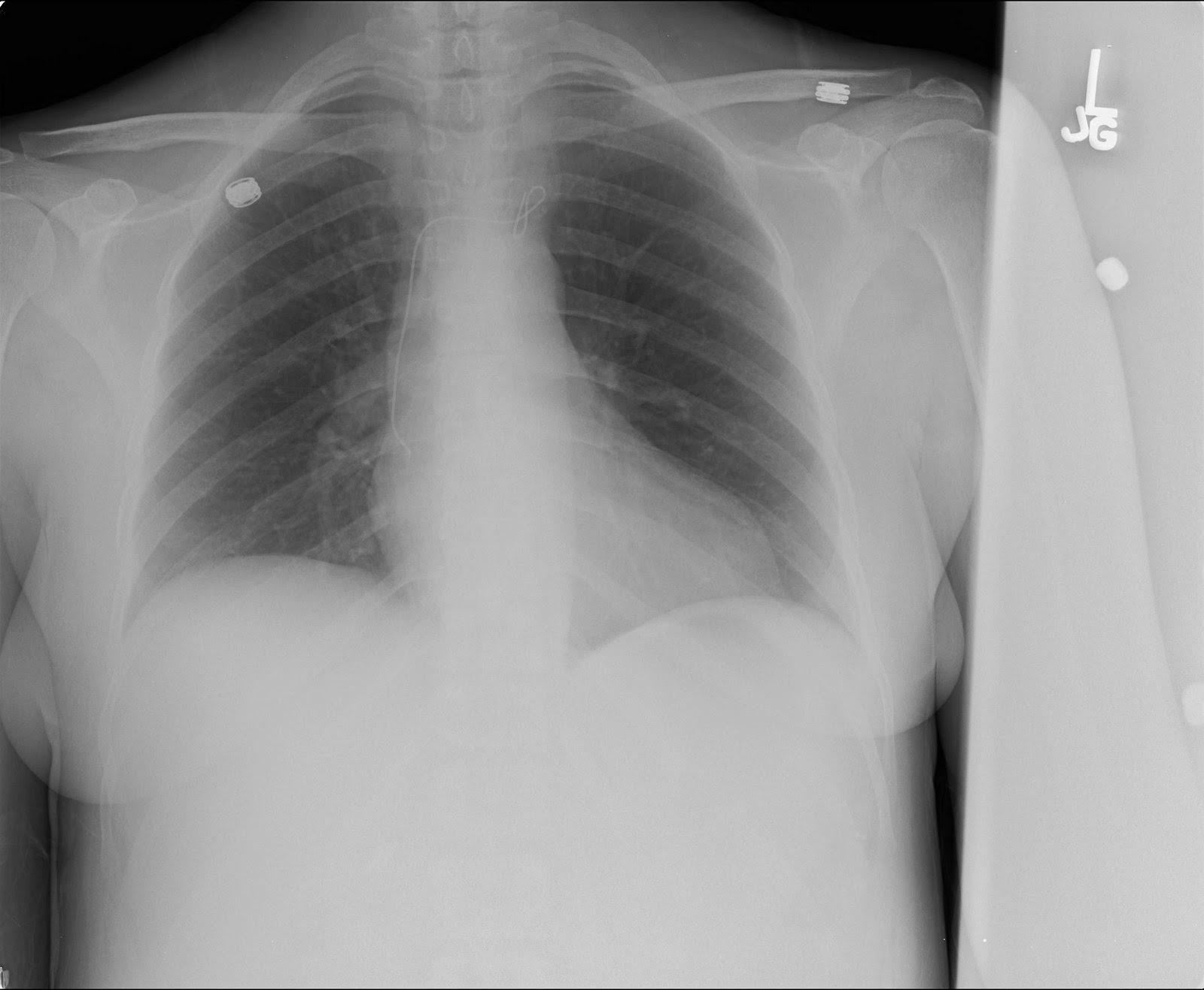Wire in Left Brachiocephalic vein/SVC... Foreign Body retrieval ...