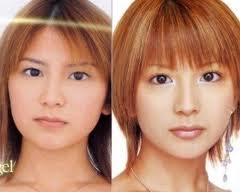 Morning Musume plastic surgery
