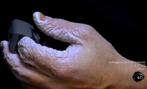 Após dez dias submerso, homem mostra resultado nas mãos