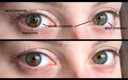 Como rapidamente retirar hypostases de olhos de manhã