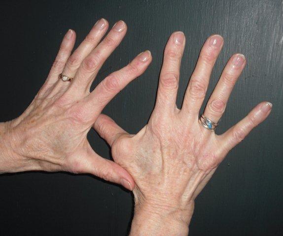 how to help swollen knuckles
