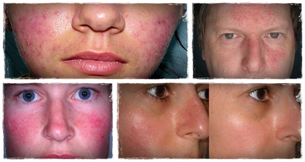 Symptoms Of Rosacea