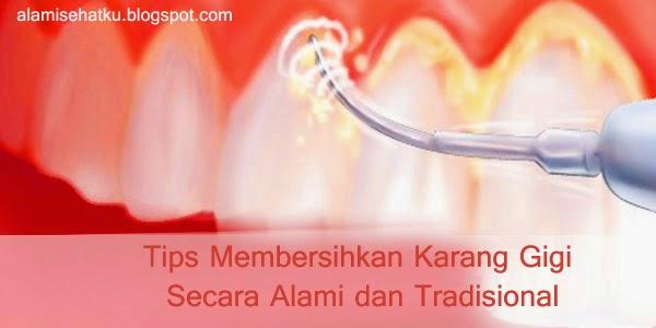 Tips Membersihkan Karang Gigi Secara Alami Dan Tradisional News Dunia