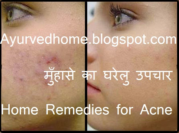 how to cure pimples permanently