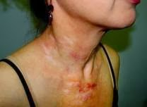My Voice Side Effects Of Radiation Treatment For Head And Neck Cancer