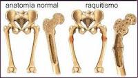 http://www.elitearteydanza.com.ar/enciclopedia-anatomia-apartado02-raquitismo.htm