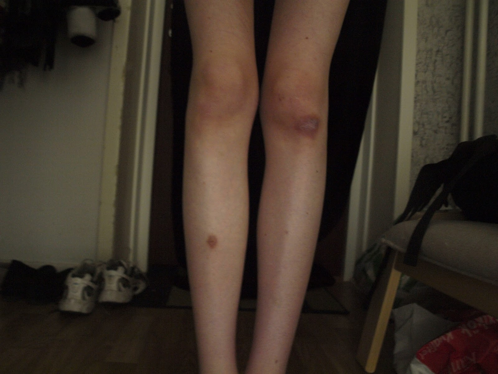A Life without Anorexia  Love your legs