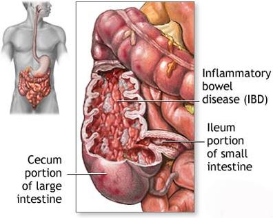 cara mengobati radang usus