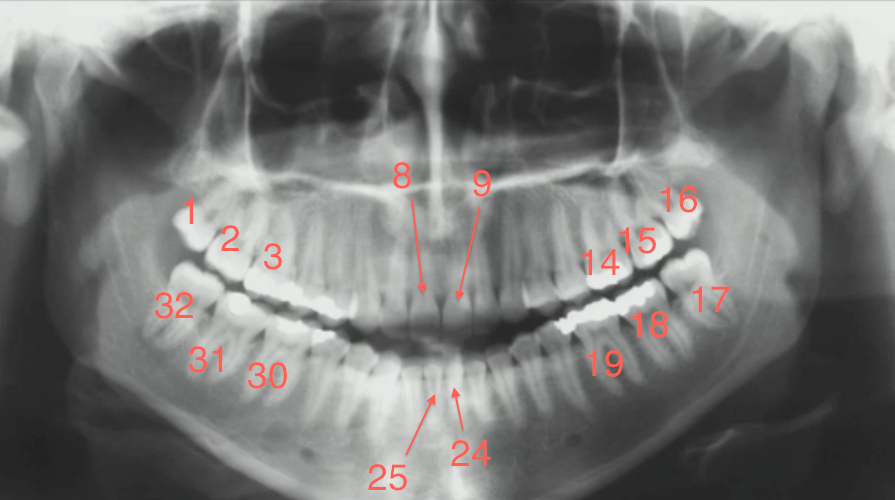 Teeth Numbers For Radiology
