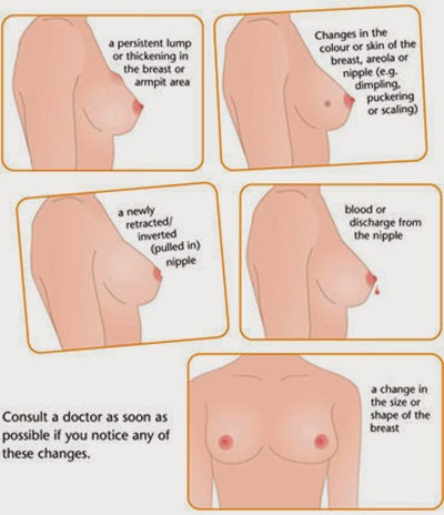 What are the symptoms of breast cancer? - Breast Cancer