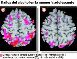 El alcohol coser el torpedo del alcoholismo