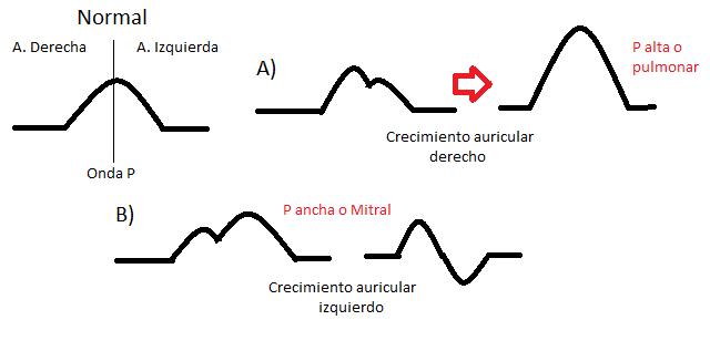 Detrás de la consulta: Electrocardiografía 03 ...