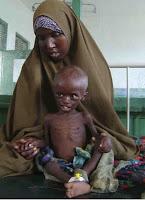 ibu dan anak yang kekurangan zat makanan