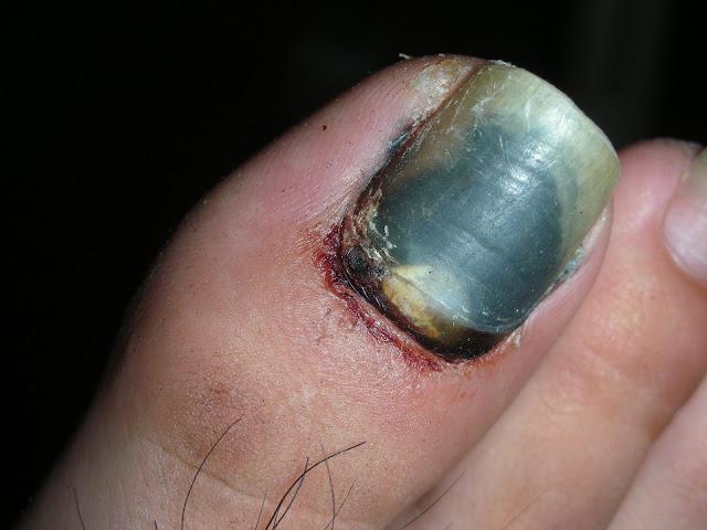 腳指甲掉了,被摩扥車中柱夾到