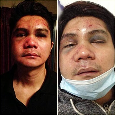 Vhong Navarro after the attack [Photo courtesy of Vhong via ABS-CBN News]