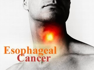 Esophageal Cancer Causes, Symptoms, Diagnosis, Treatment, Side Ecffects And Nutrition