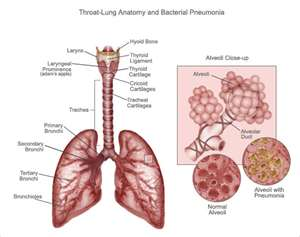 how long does pneumonia last latest news update