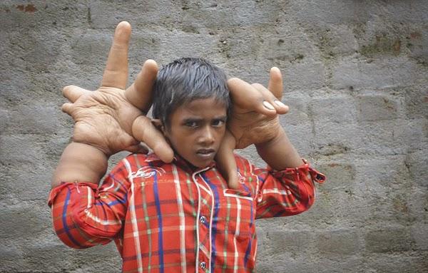 Foto Manusia Dengan Tangan Terbesar Di Dunia - Trends7Media
