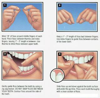 نزيف الأسنان أثناء تنظيفها