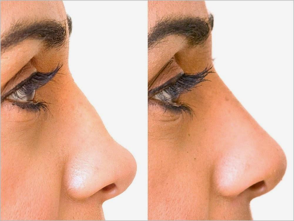 ����� ����� ���� ����� Nose.Job_.rhinoplasty-procedures.jpg