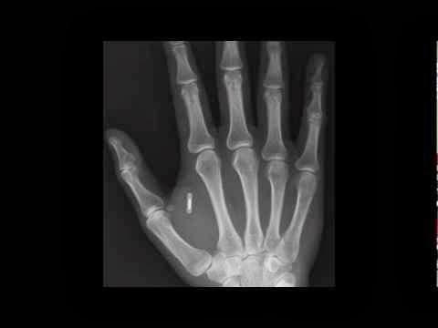 Misteri Implan Microchip 666 Mondex Pada Tubuh Manusia
