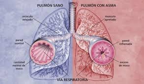 asma+pulmon+afectado