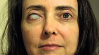 one-eye-woman