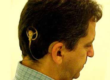 Implantes cocleares para adultos